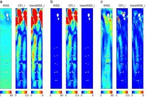 Understanding the fluid mechanics behind transverse wall shear stress